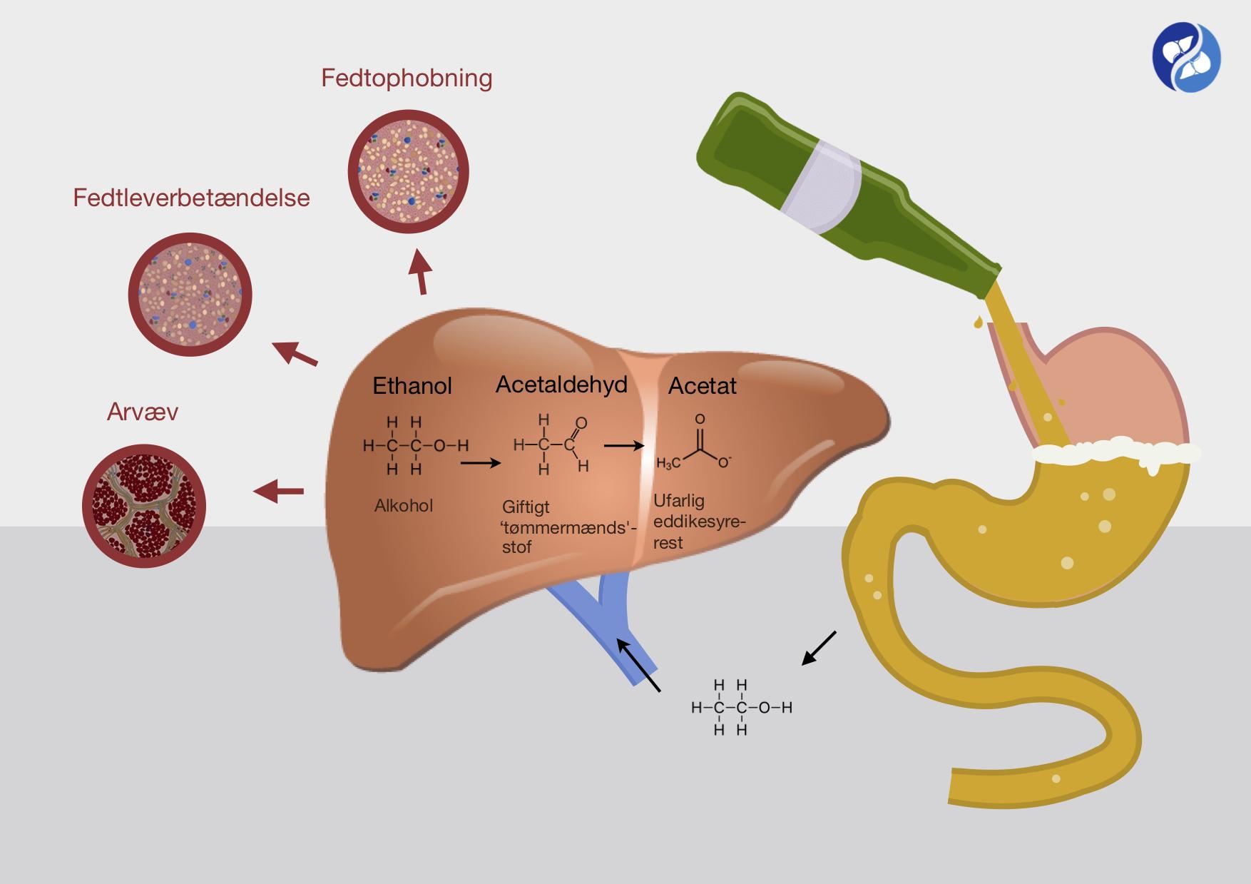 Illustration af hvorfor alkohol skader leveren